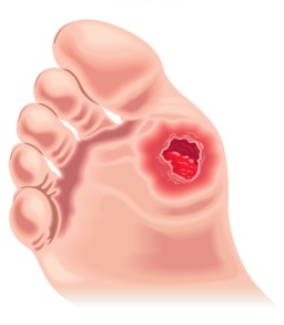 Management Prevention Of Diabetic Foot Ulcers Woundsource