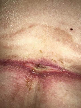 Common Skin Conditions In Obese Patients Woundsource