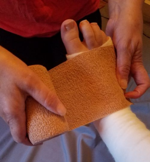 The Rap On Wrapping 10 Tips For Effectively Bandaging A Wound Woundsource