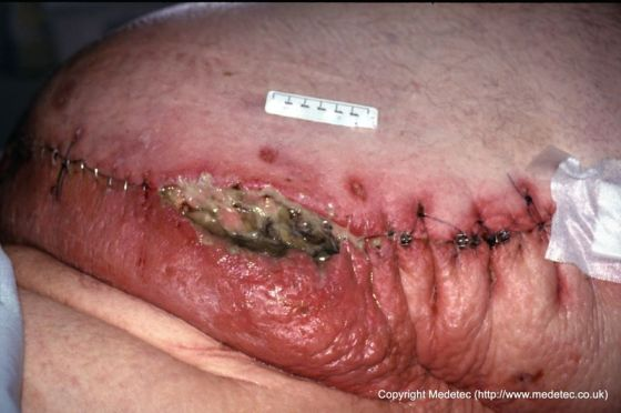 Dehisced Surgical Wound, Bariatric Patient