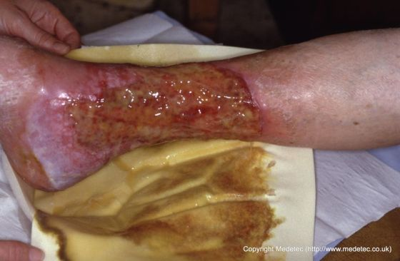 Removal of wound dressing ineffective in managing exudate