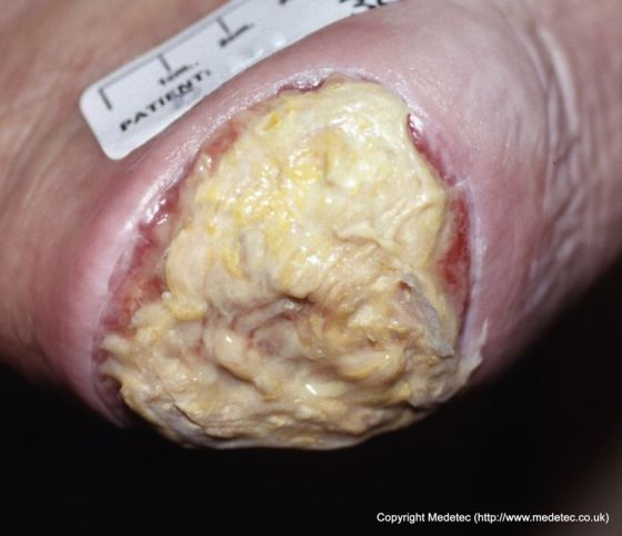 Sloughy Heel Pressure Ulcer, Unstageable
