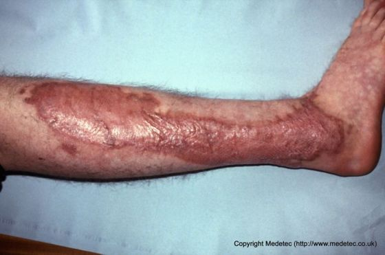 Skin graft site, lower leg