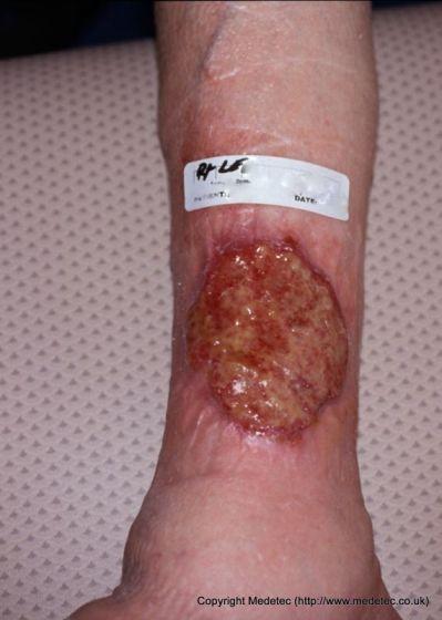 Ulcera venosa da insufficienza