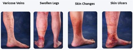 Venous Insufficiency is treated at Encompass HealthCare and Wound Medicine, West Bloomfield, Michigan