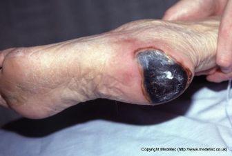 eschar on heel pressure ulcer