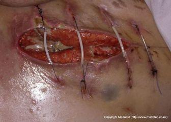 wound dihescence on abdomen