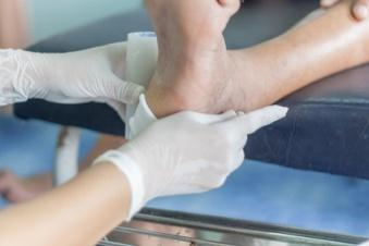 diabetic foot ulcer treatment