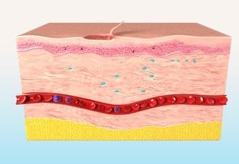 the final stage of wound healing