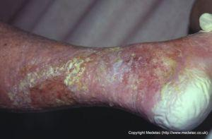 maceration of periwound skin