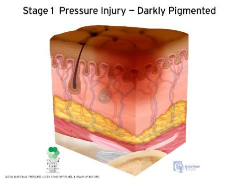Stage 1 Pressure Injury - Darkly Pigmented Skin