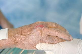 Patient Education and Wound Cleansing