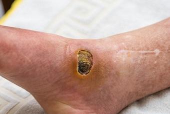 Periwound skin