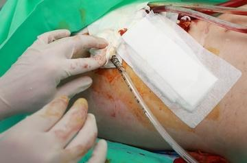post-operative wound drainage