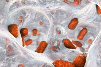 The Skin Microbiome: Factors Related to Wound Chronicity