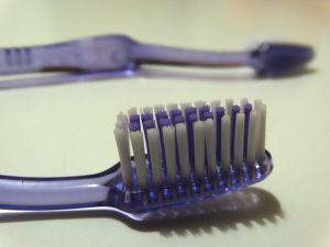 CRisk Factors: Poor Oral Hygiene and Aspiration Pneumonia