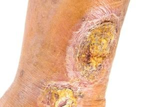 Ulcerative Wounds