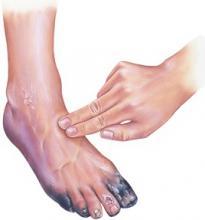 Necrotic Foot