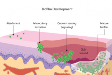 biofilm development stages