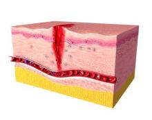 factors affecting healing in chronic wounds