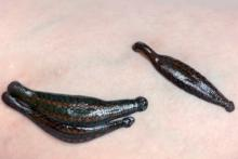 medical leech therapy