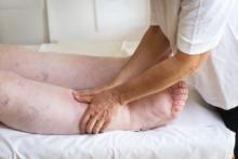 lymphedema management and prevention