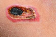 necrotic tissue in wound