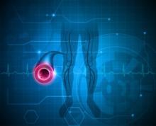 arterial and vascular disease