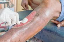 Wound Bed Assessment